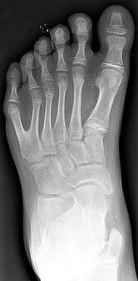 Radiografía de un pie izquierdo con polidactilia y parece haber sido un patrón habitual entre las razas de gigantes